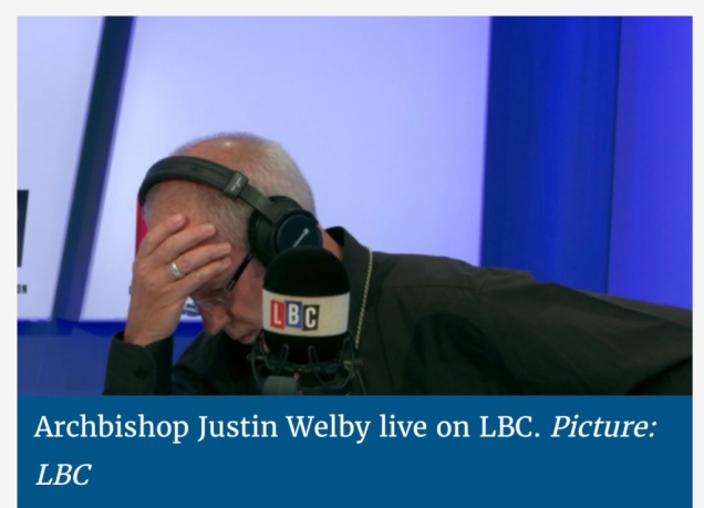 welby_facepalm